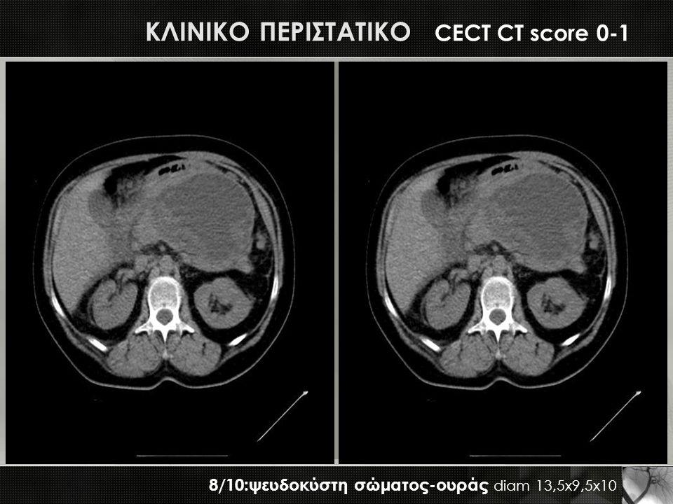 ΚΛΙΝΙΚΟ ΠΕΡΙΣΤΑΤΙΚΟ ΚΛΙΝΙΚΟ ΠΕΡΙΣΤΑΤΙΚΟ CECT CT score 0-1 8/10:ψευδοκύστη σώματος-ουράς diam 13,5x9,5x10