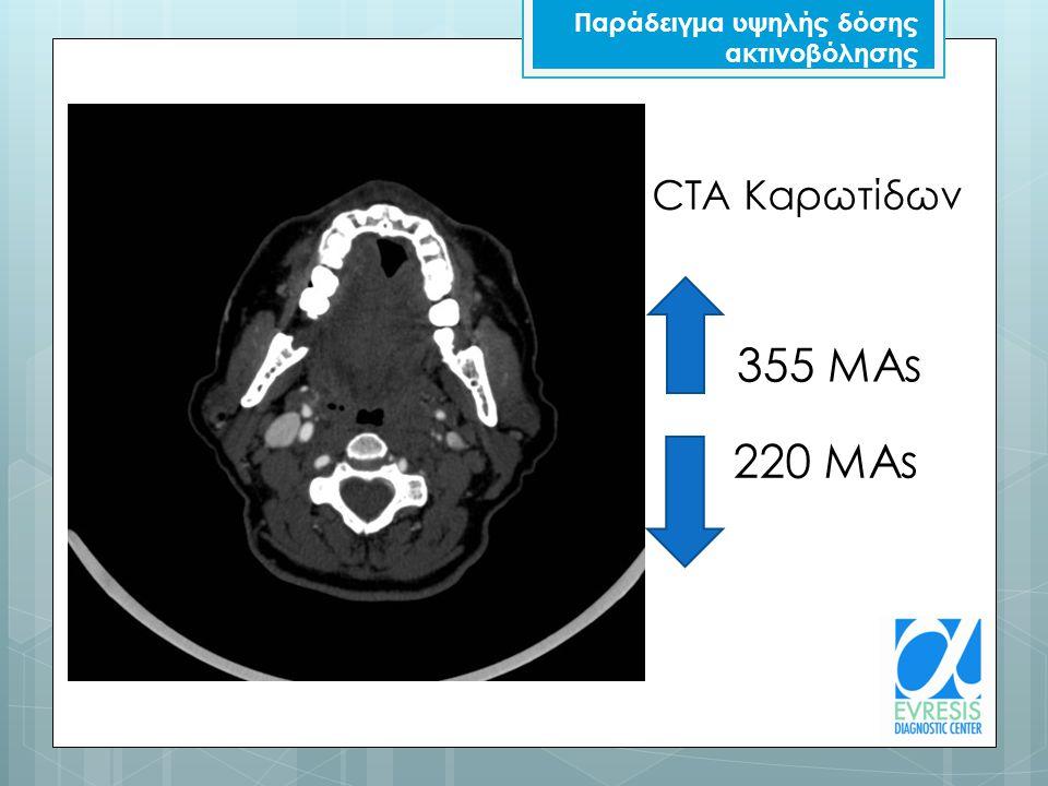 CTA Καρωτίδων 355 MAs 220 MAs Παράδειγμα υψηλής δόσης ακτινοβόλησης