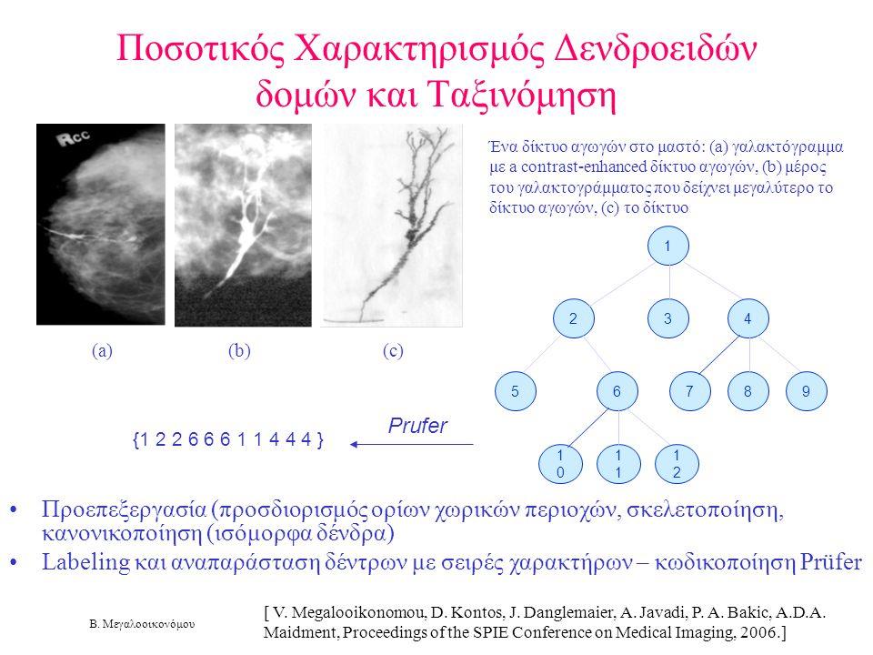 Β. Μεγαλοοικονόμου Ποσοτικός Χαρακτηρισμός Δενδροειδών δομών και Ταξινόμηση Ένα δίκτυο αγωγών στο μαστό: (a) γαλακτόγραμμα με a contrast-enhanced δίκτ