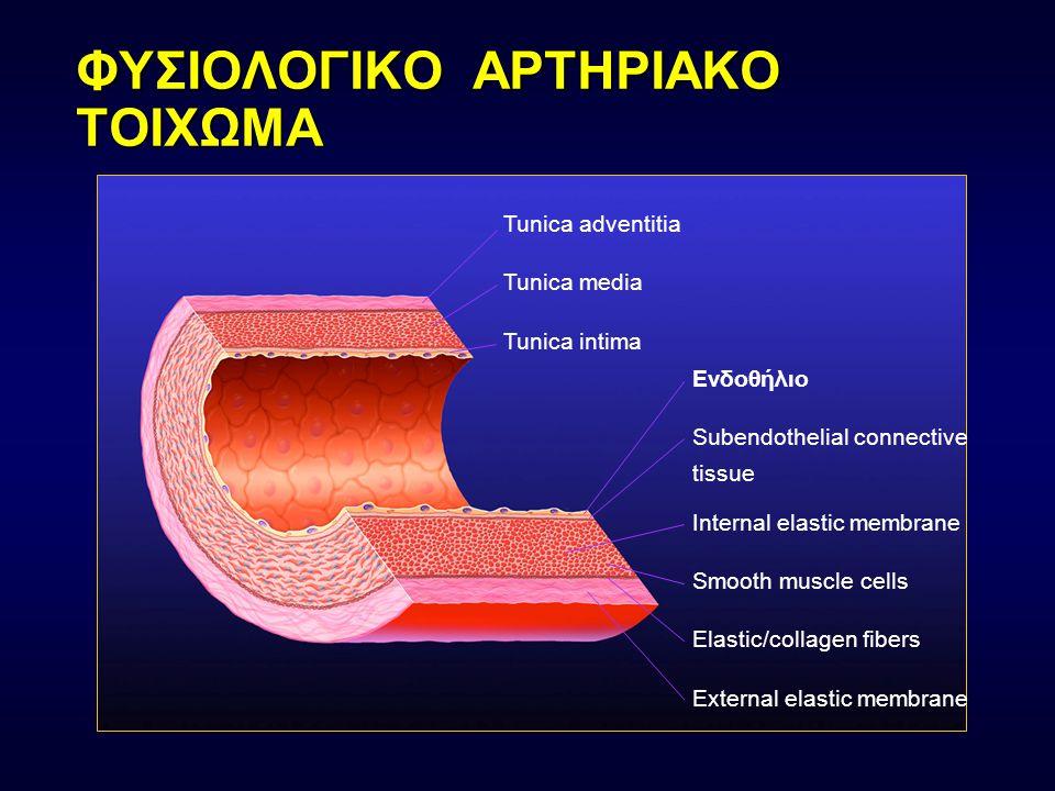 ΦΥΣΙΟΛΟΓΙΚΟ ΑΡΤΗΡΙΑΚΟ ΤΟΙΧΩΜΑ Tunica adventitia Tunica media Tunica intima Eνδοθήλιο Subendothelial connective tissue Internal elastic membrane Smooth