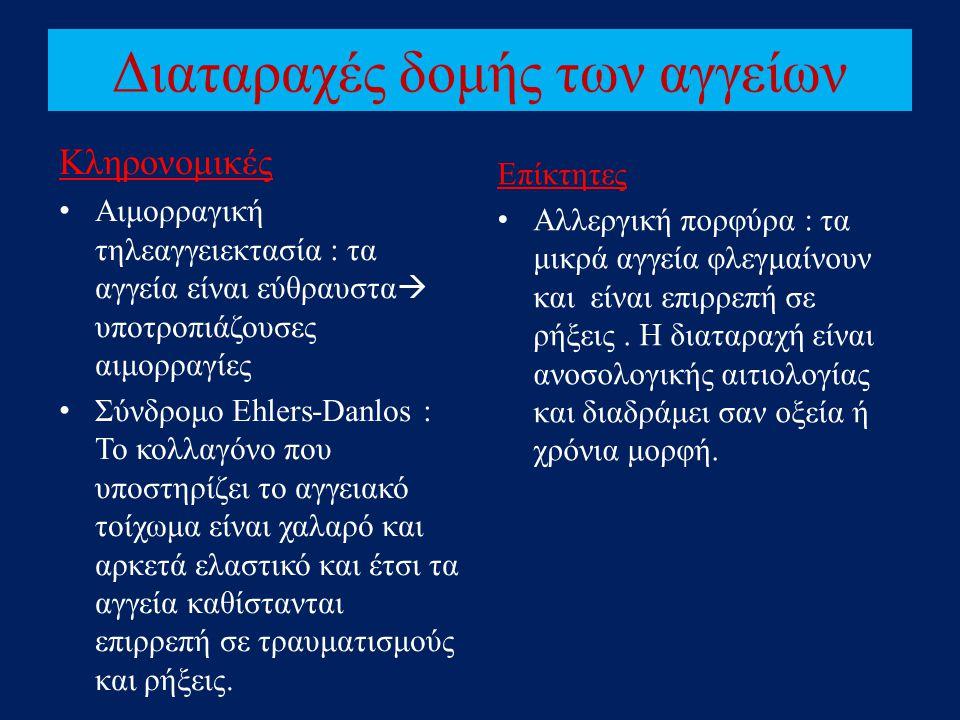Διαταραχές δομής των αγγείων Κληρονομικές • Αιμορραγική τηλεαγγειεκτασία : τα αγγεία είναι εύθραυστα  υποτροπιάζουσες αιμορραγίες • Σύνδρομο Ehlers-D