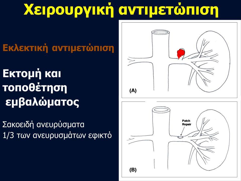 Χειρουργική αντιμετώπιση Εκλεκτική αντιμετώπιση Εκτομή και τοποθέτηση εμβαλώματος Σακοειδή ανευρύσματα 1/3 των ανευρυσμάτων εφικτό