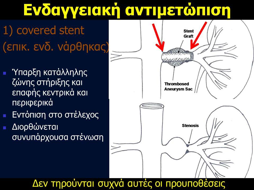 1) covered stent (επικ. ενδ. νάρθηκας)  Ύπαρξη κατάλληλης ζώνης στήριξης και επαφής κεντρικά και περιφερικά  Εντόπιση στο στέλεχος  Διορθώνεται συν