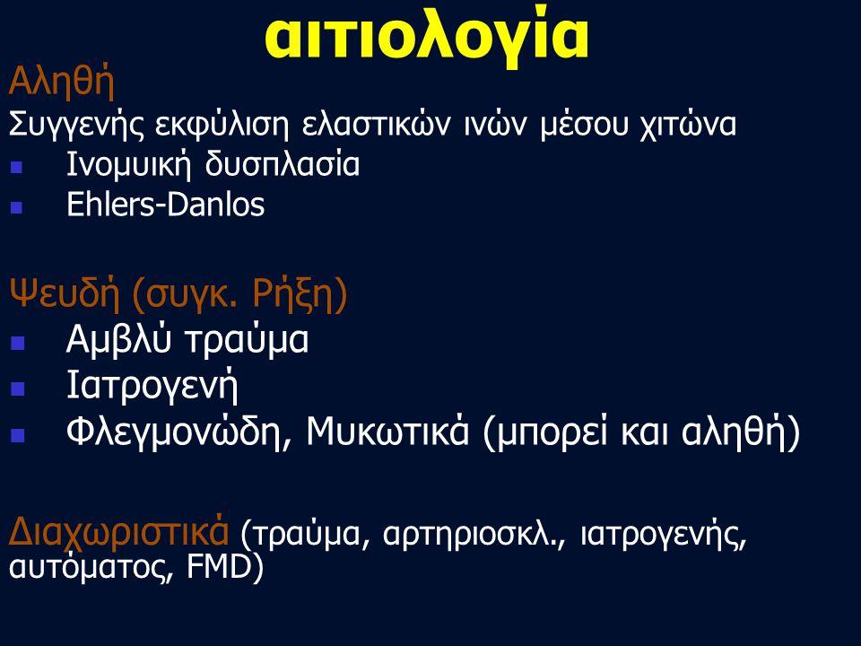 αιτιολογία Αληθή Συγγενής εκφύλιση ελαστικών ινών μέσου χιτώνα  Ινομυική δυσπλασία  Ehlers-Danlos Ψευδή (συγκ. Ρήξη)  Αμβλύ τραύμα  Ιατρογενή  Φλ