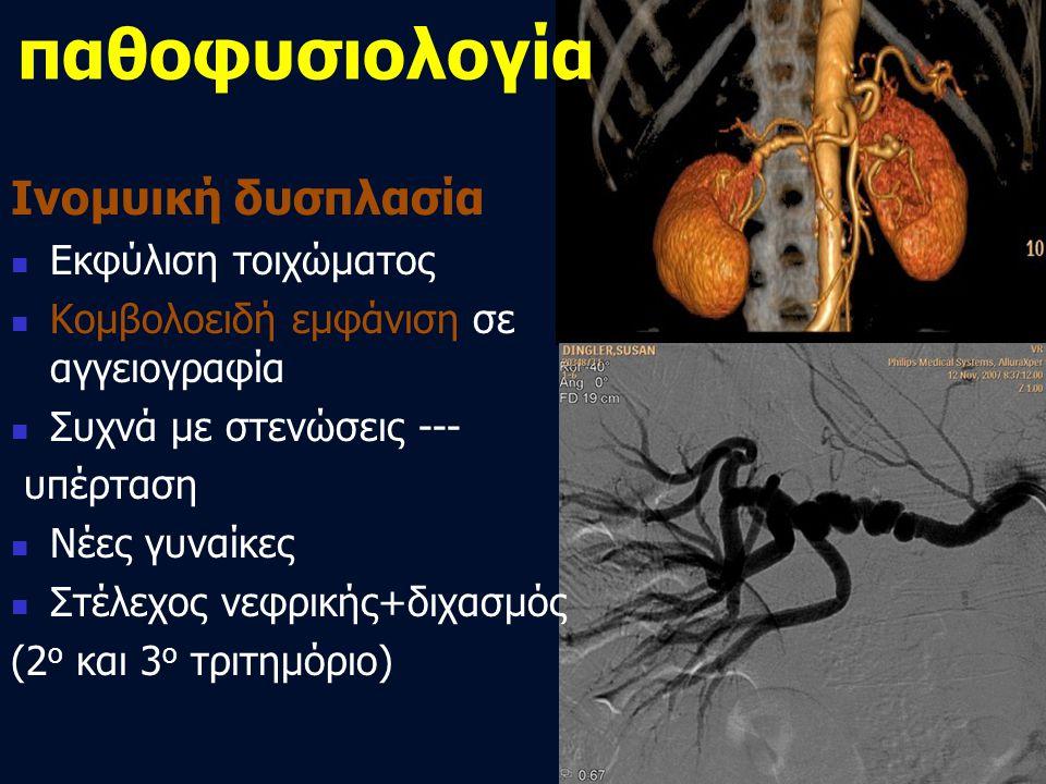 Ινομυική δυσπλασία  Εκφύλιση τοιχώματος  Κομβολοειδή εμφάνιση σε αγγειογραφία  Συχνά με στενώσεις --- υπέρταση  Νέες γυναίκες  Στέλεχος νεφρικής+