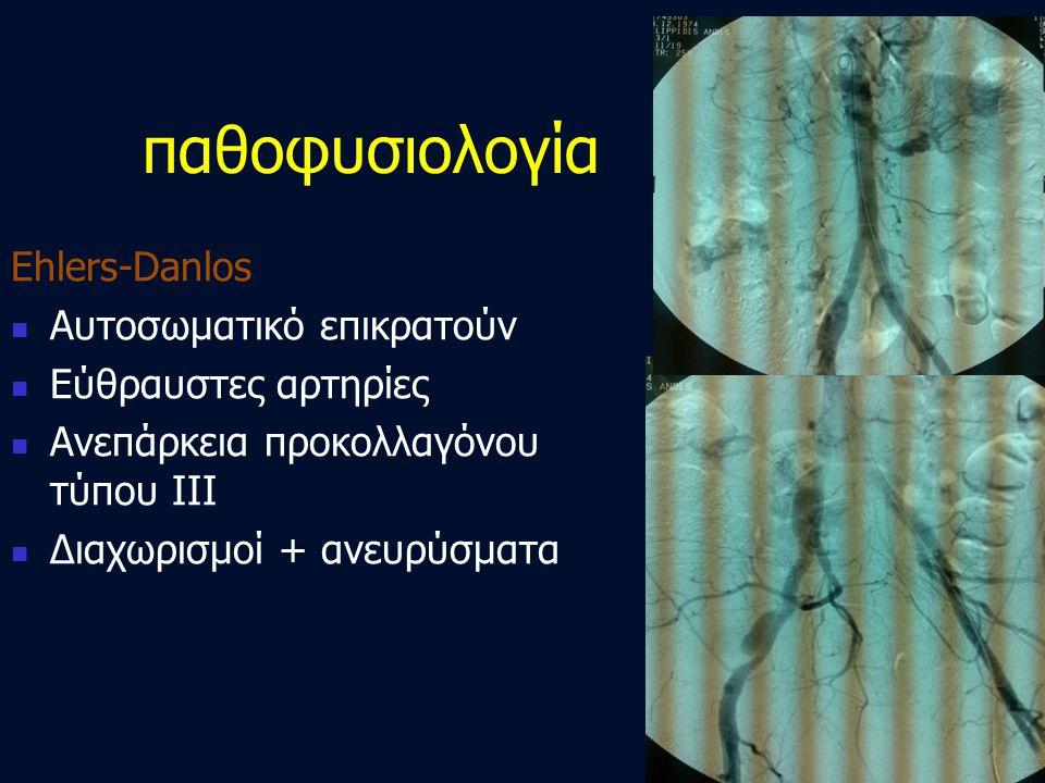 Ehlers-Danlos  Αυτοσωματικό επικρατούν  Εύθραυστες αρτηρίες  Ανεπάρκεια προκολλαγόνου τύπου III  Διαχωρισμοί + ανευρύσματα