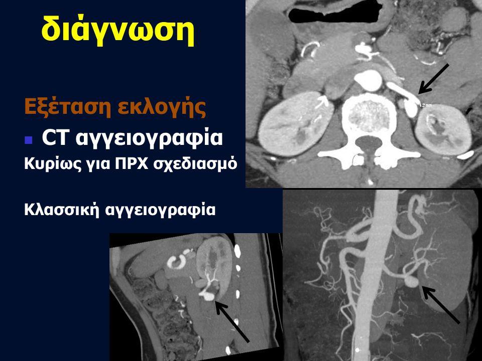 διάγνωση Εξέταση εκλογής  CT αγγειογραφία Κυρίως για ΠΡΧ σχεδιασμό Κλασσική αγγειογραφία