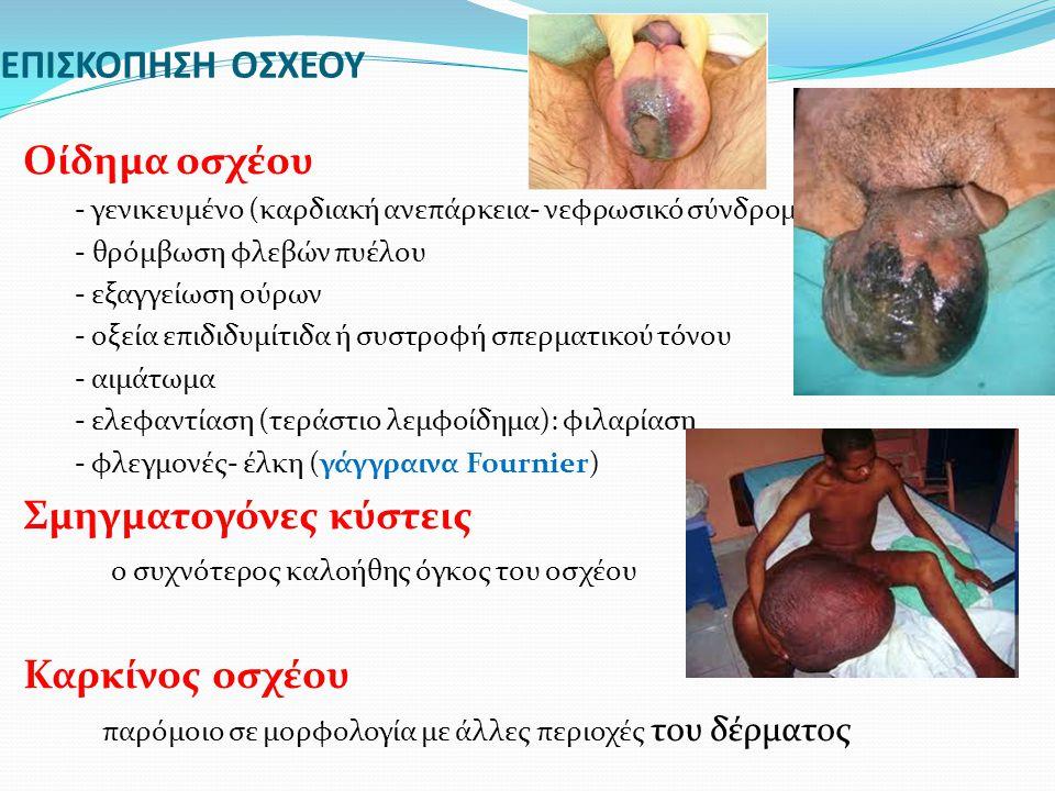 ΕΠΙΣΚΟΠΗΣΗ ΟΣΧΕΟΥ Οίδημα οσχέου - γενικευμένο (καρδιακή ανεπάρκεια- νεφρωσικό σύνδρομο) - θρόμβωση φλεβών πυέλου - εξαγγείωση ούρων - οξεία επιδιδυμίτ