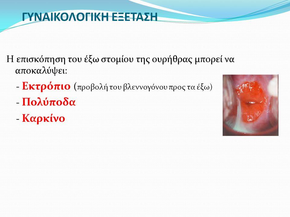 ΓΥΝΑΙΚΟΛΟΓΙΚΗ ΕΞΕΤΑΣΗ Η επισκόπηση του έξω στομίου της ουρήθρας μπορεί να αποκαλύψει: - Εκτρόπιο ( προβολή του βλεννογόνου προς τα έξω) - Πολύποδα - Κ