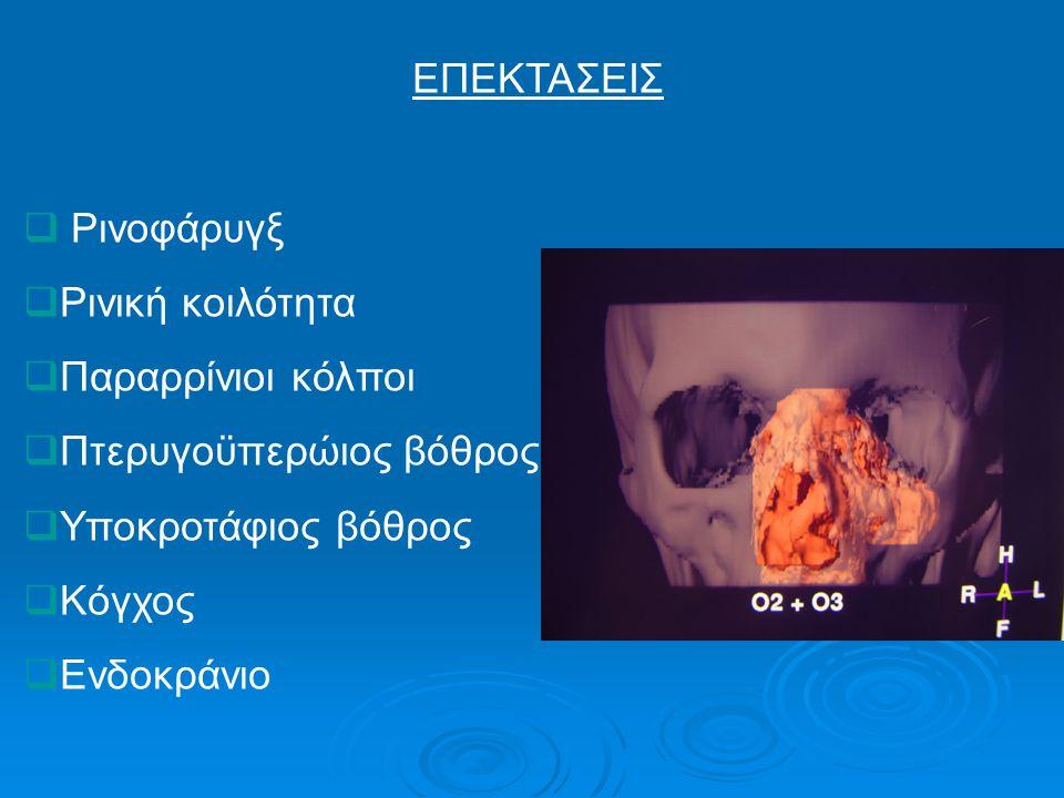 ΕΠΕΚΤΑΣΕΙΣ  Ρινοφάρυγξ  Ρινική κοιλότητα  Παραρρίνιοι κόλποι  Πτερυγοϋπερώιος βόθρος  Υποκροτάφιος βόθρος  Κόγχος  Ενδοκράνιο