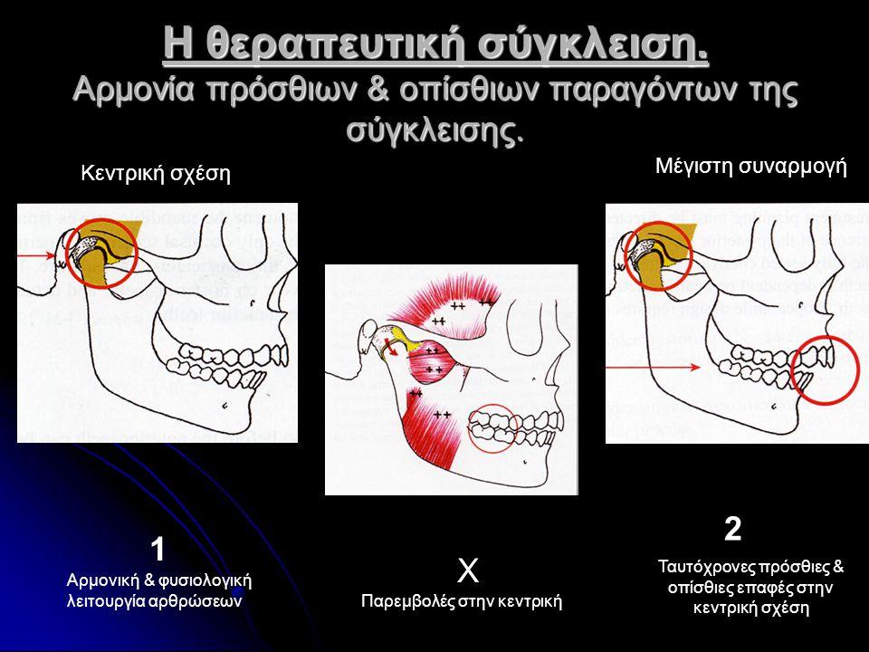 Η θεραπευτική σύγκλειση. Αρμονία πρόσθιων & οπίσθιων παραγόντων της σύγκλεισης. 1 2 Χ Αρμονική & φυσιολογική λειτουργία αρθρώσεων Ταυτόχρονες πρόσθιες