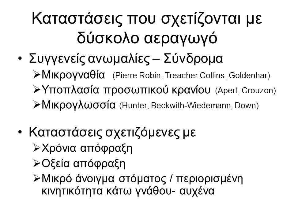 Καταστάσεις που σχετίζονται με δύσκολο αεραγωγό •Συγγενείς ανωμαλίες – Σύνδρομα  Μικρογναθία (Pierre Robin, Treacher Collins, Goldenhar)  Υποπλασία