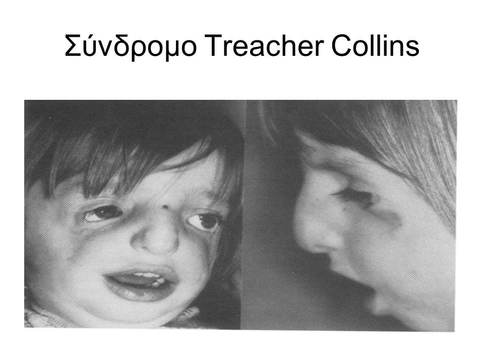 Σύνδρομο Treacher Collins