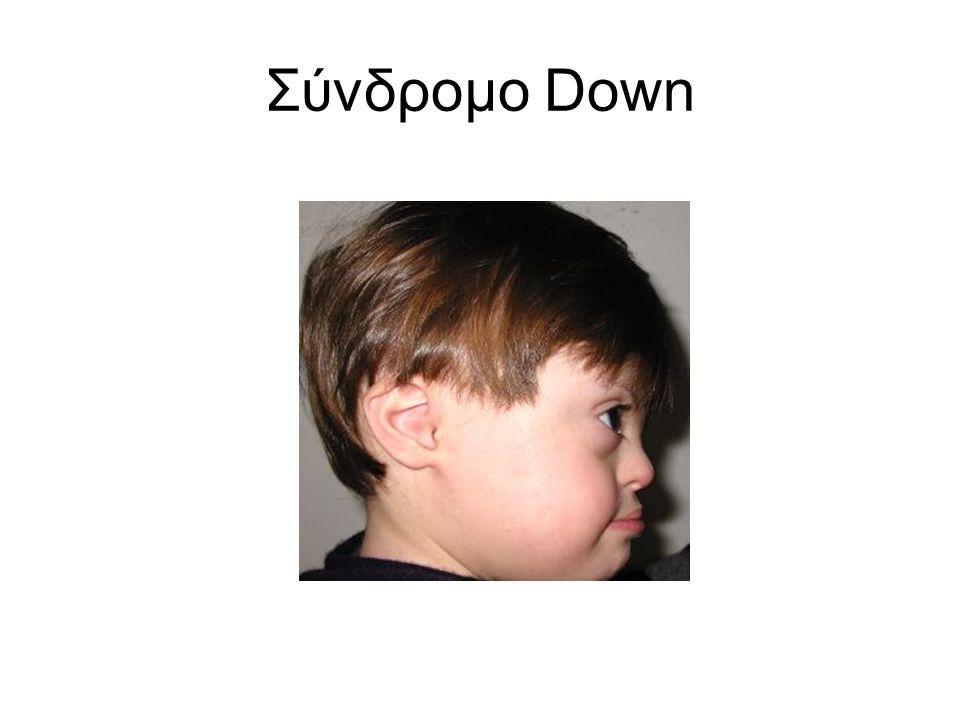 Σύνδρομο Down