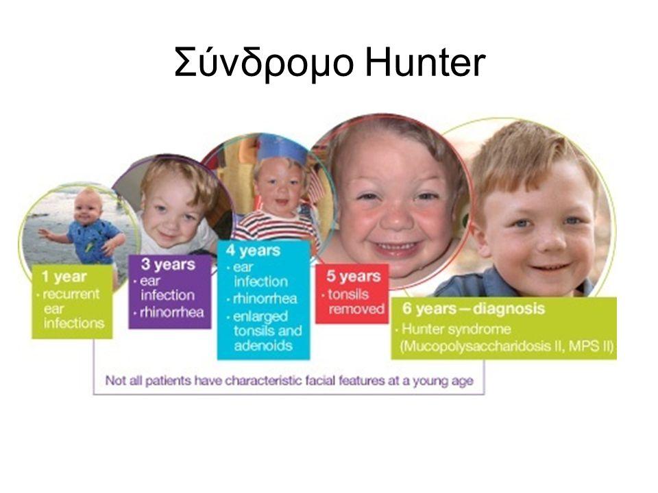 Σύνδρομο Hunter