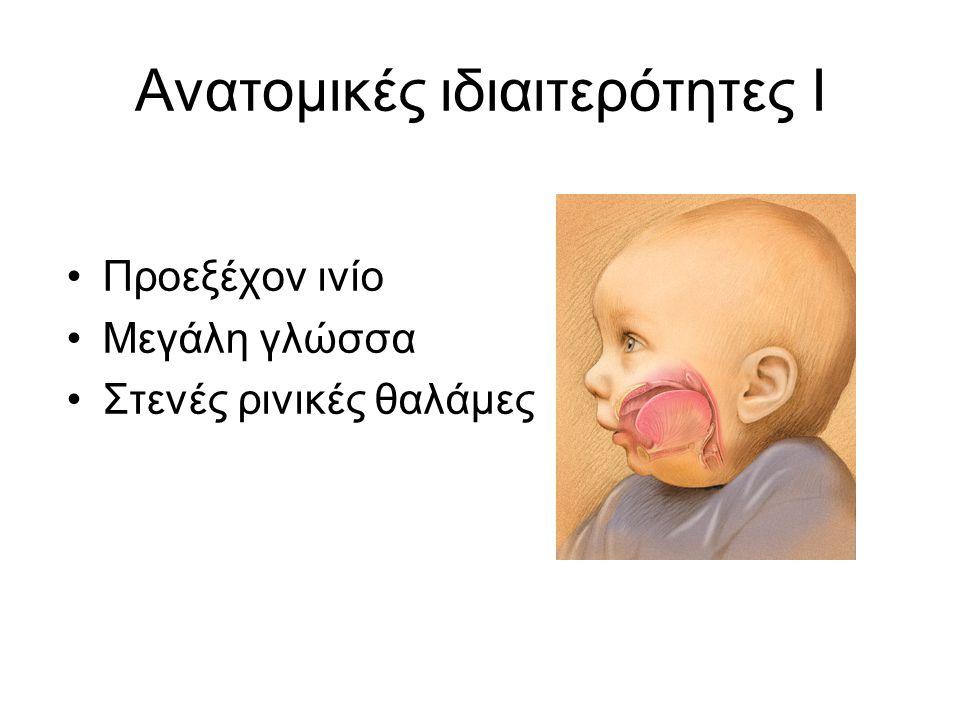 Ανατομικές ιδιαιτερότητες Ι •Επιγλωττίδα Α 1 στο βρέφος,Α 3 στον ενήλικα μακριά, σχήμα Ω 45 ο γωνία με το φαρυγγικό τοίχωμα Nose breathers •Λάρυγγας Α 3 -Α 4 βρέφος, Α 4 -Α 5 2 ετών, Α 5 -Α 6 ενήλικας Σχήμα ανεστραμμένου χωνιού •Μεγάλα ρουθούνια και αδενοειδείς εκβλαστήσεις