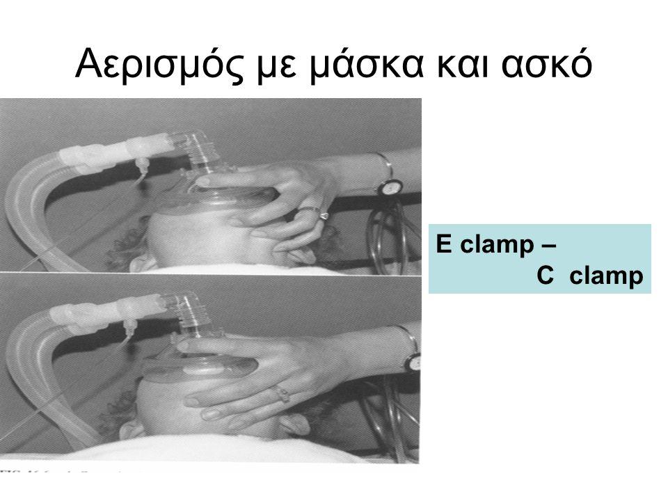 Αερισμός με μάσκα και ασκό E clamp – C clamp