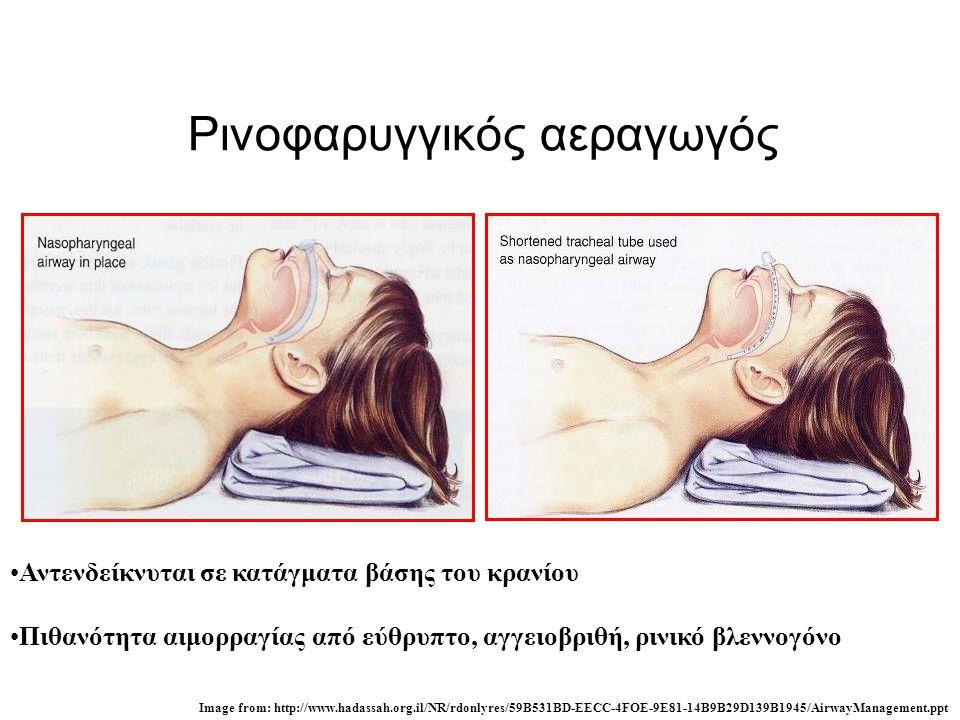 Ρινοφαρυγγικός αεραγωγός •Αντενδείκνυται σε κατάγματα βάσης του κρανίου •Πιθανότητα αιμορραγίας από εύθρυπτο, αγγειοβριθή, ρινικό βλεννογόνο Image fro
