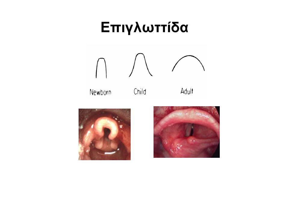 Ιστορικό Ι •Λοίμωξη ανώτερου αναπνευστικού (Λαρυγγόσπασμος, βρογχόσπασμος, αποκορεσμός) •Ροχαλητό /θορυβώδης αναπνοή (Υπερτροφία αδενοειδων, απόφραξη ανώτερου αεραγωγού) •Χρόνιος βήχας (Υπογλωττιδική στένωση, χ/θεν ΤΟΣ) •Παραγωγικός βήχας (Βρογχίτιδα, πνευμονία) •Βήχας αιφνίδιας έναρξης (Ξένο σώμα) •Εισπνευστικός συριγμός (Μακρογλωσσία, λαρυγγομαλακία) •Βράγχος φωνής (Λαρυγγίτιδα,πάρεση φων.χορδής)