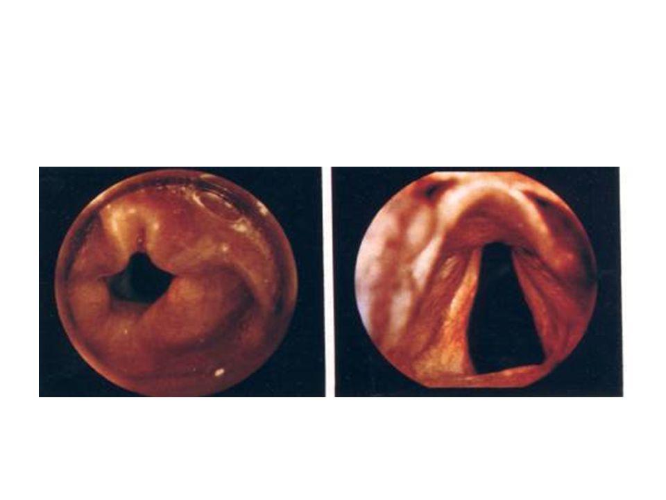 Λάρυγγας •Ο κρικοειδής χόνδρος αποτελεί το στενότερο σημείο της τραχείας •Μικρή κρικοθυρεοειδική μεμβράνη •Image from: http://www.hadassah.org.il/NR/rdonlyres/59B531BD- EECC-4FOE-9E81- 14B9B29D139B1945/AirwayManagement.ppt INFANTADULT