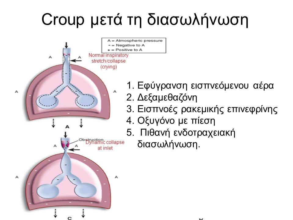 Croup μετά τη διασωλήνωση Normal inspiratory stretch/collapse (crying) Dynamic collapse at inlet Bronchiolitis/asthma 1.Εφύγρανση εισπνεόμενου αέρα 2.