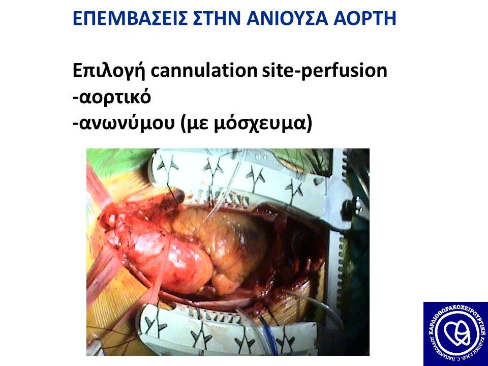 ΕΠΕΜΒΑΣΕΙΣ ΣΤΗΝ ΑΝΙΟΥΣΑ ΑΟΡΤΗ Επιλογή cannulation site-perfusion -αορτικό -ανωνύμου (με μόσχευμα)