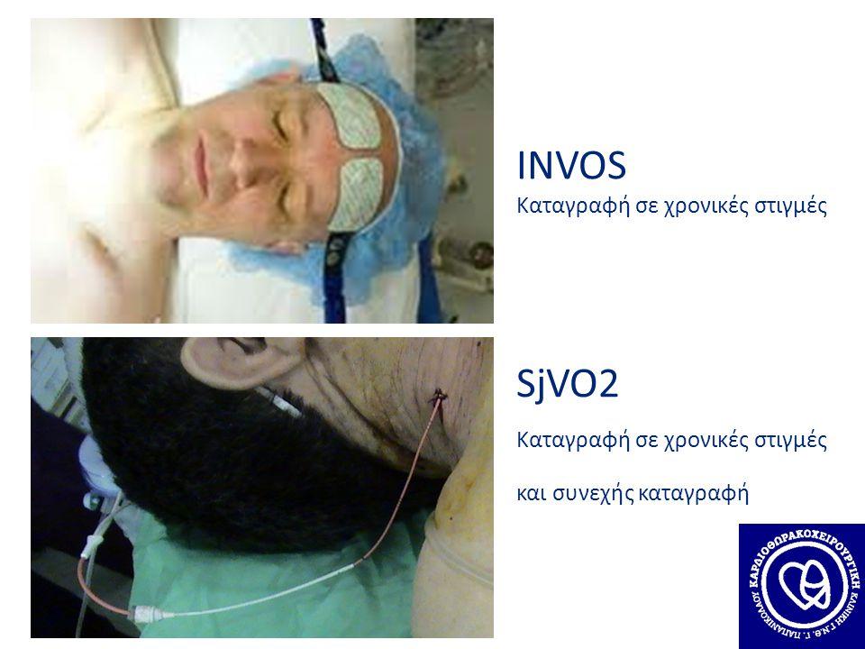 INVOS Καταγραφή σε χρονικές στιγμές SjVO2 Καταγραφή σε χρονικές στιγμές και συνεχής καταγραφή