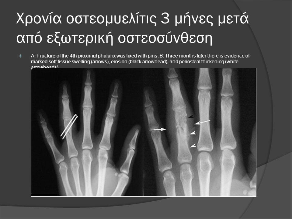 Χρονία οστεομυελίτις 3 μήνες μετά από εξωτερική οστεοσύνθεση  A: Fracture of the 4th proximal phalanx was fixed with pins.B: Three months later there