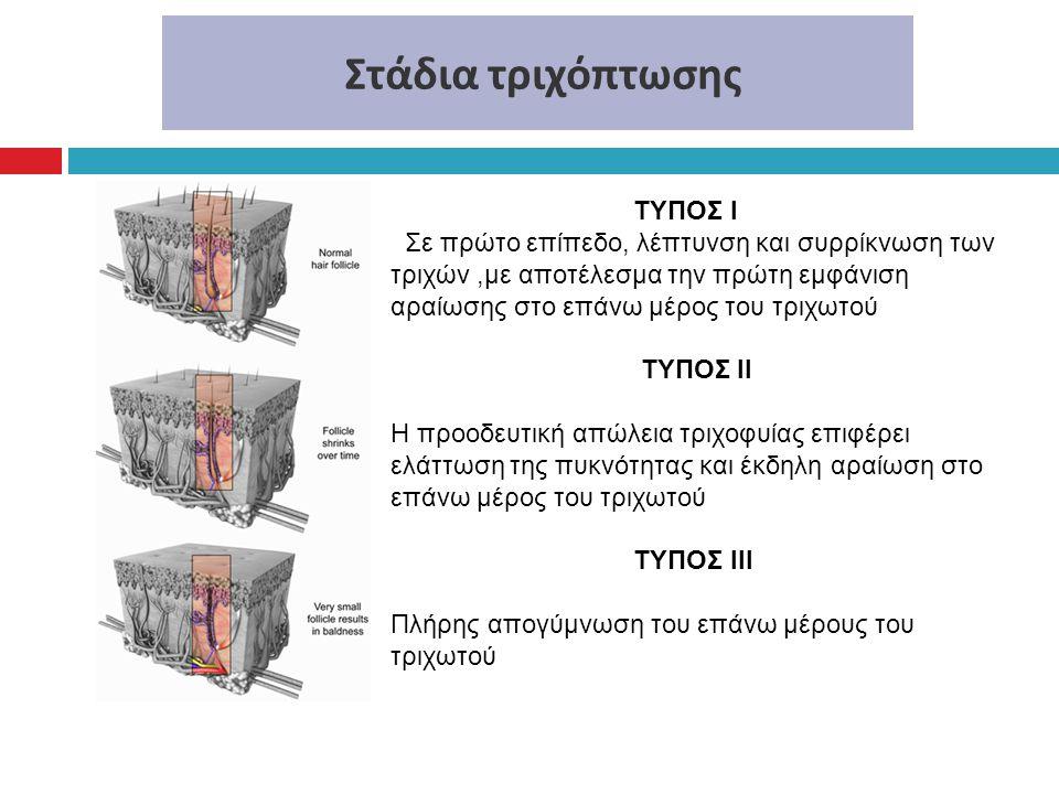 Στάδια τριχόπτωσης ΤΥΠΟΣ Ι Σε πρώτο επίπεδο, λέπτυνση και συρρίκνωση των τριχών,με αποτέλεσμα την πρώτη εμφάνιση αραίωσης στο επάνω μέρος του τριχωτού