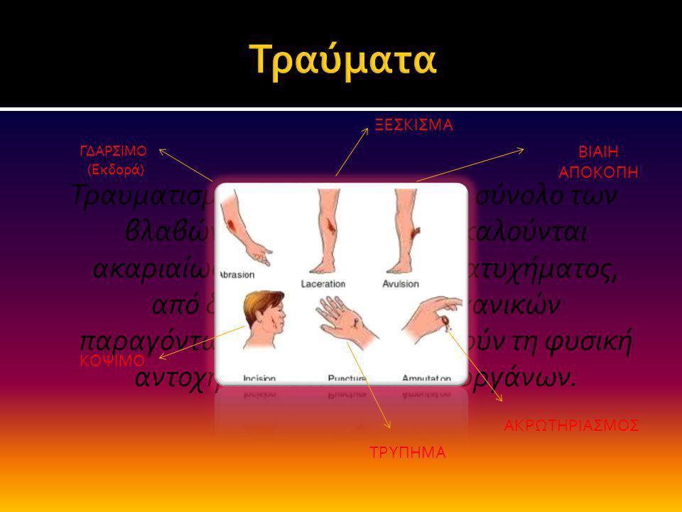 Τραυματισμός ή κάκωση είναι το σύνολο των βλαβών των ιστών πού προκαλούνται ακαριαίως κατά τη στιγμή του ατυχήματος, από διάφορες μορφές μηχανικών παρ