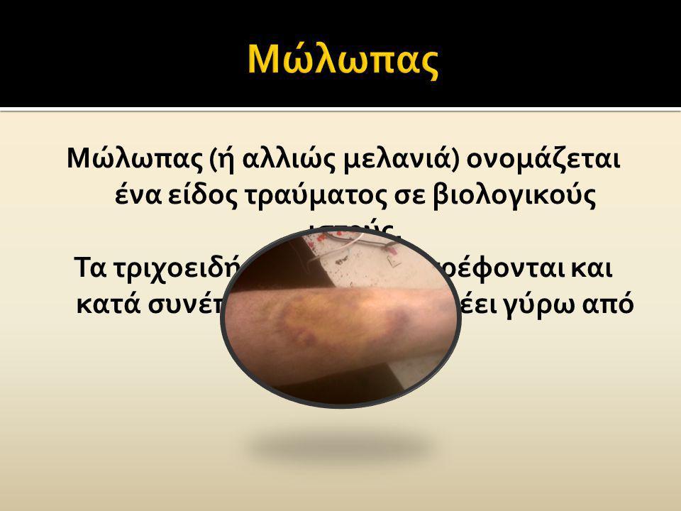 Μώλωπας (ή αλλιώς μελανιά) ονομάζεται ένα είδος τραύματος σε βιολογικούς ιστούς. Τα τριχοειδή αγγεία καταστρέφονται και κατά συνέπεια το αίμα διαρρέει