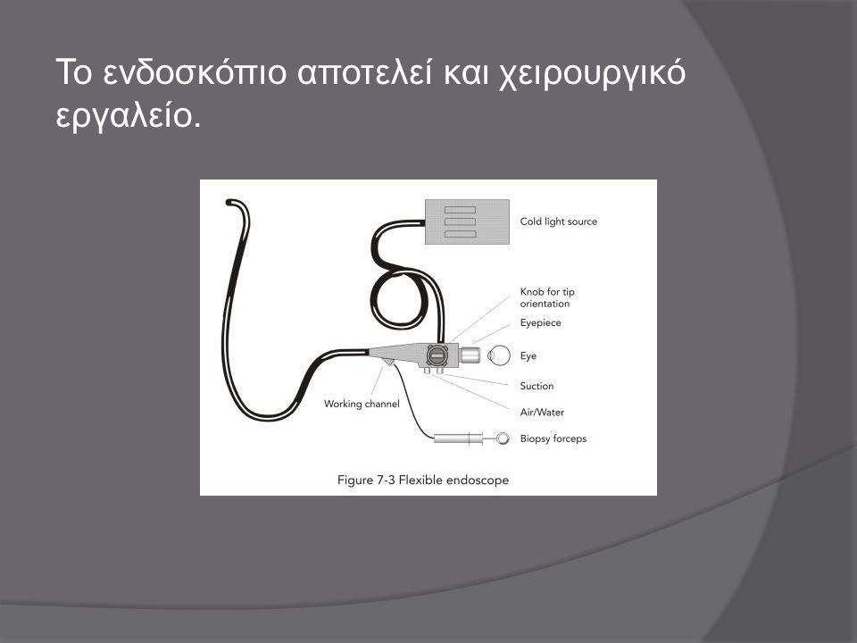 Το ενδοσκόπιο αποτελεί και χειρουργικό εργαλείο.