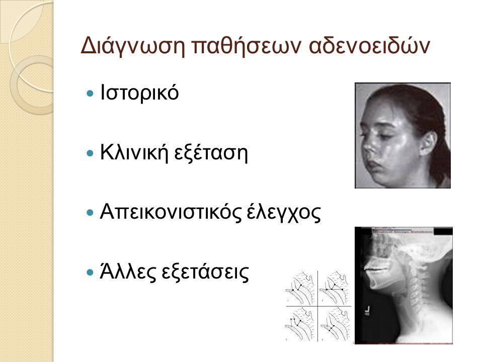 Διάγνωση παθήσεων αδενοειδών  Ιστορικό  Κλινική εξέταση  Απεικονιστικός έλεγχος  Άλλες εξετάσεις