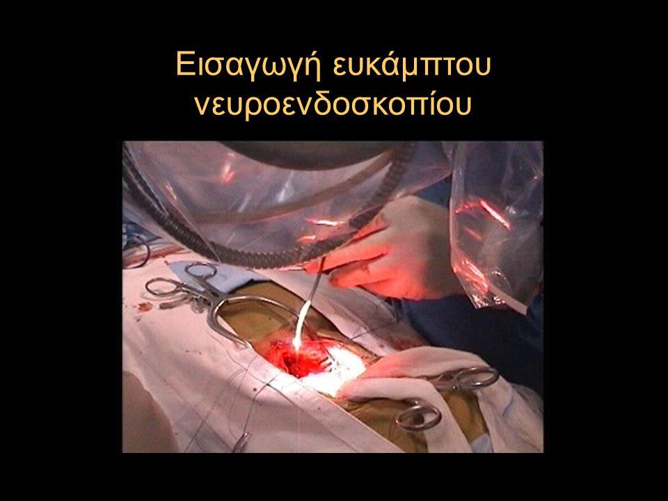 Εισαγωγή ευκάμπτου νευροενδοσκοπίου