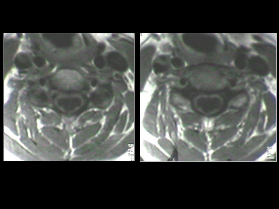 Σε περιπτώσεις με διαφραγματική και διαμερισματοποιημένη συριγγομυελία, η νευροενδοσκοπική τεχνική προτιμάται από άλλες ανεπαρκείς προσπελάσεις