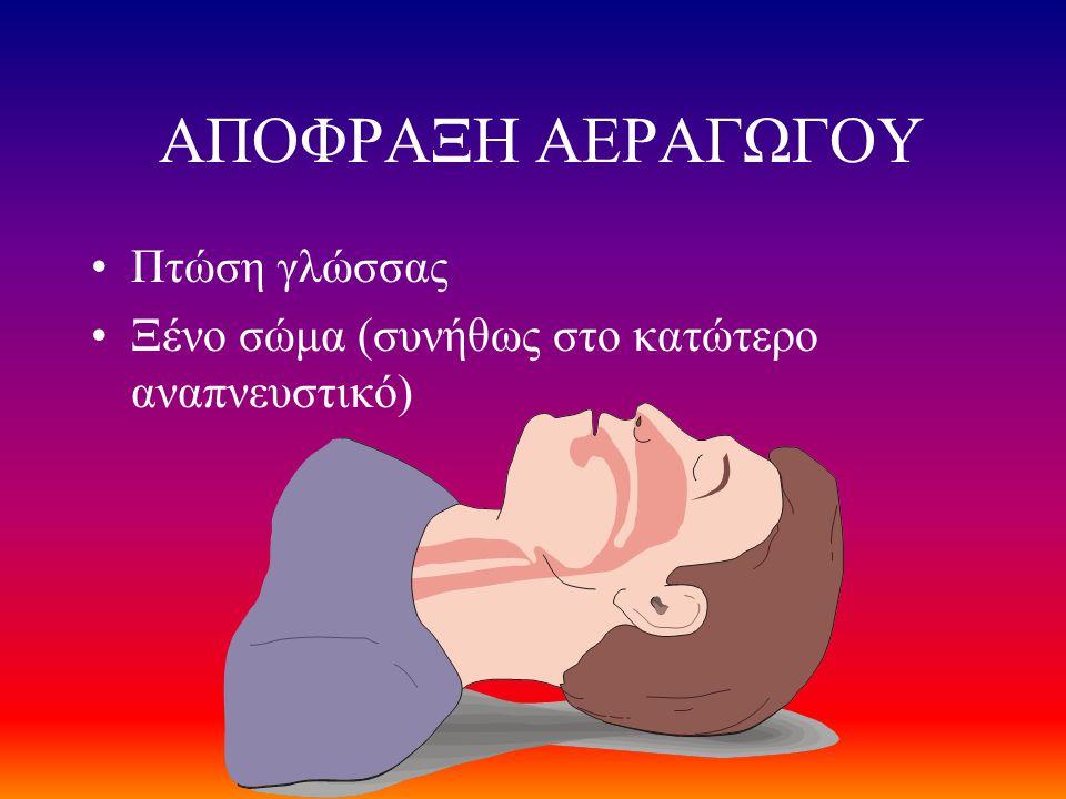 ΑΠΟΦΡΑΞΗ ΑΕΡΑΓΩΓΟΥ •Πτώση γλώσσας •Ξένο σώμα (συνήθως στο κατώτερο αναπνευστικό)