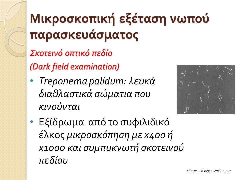 Μικροσκοπική εξέταση νωπού παρασκευάσματος Σκοτεινό οπτικό πεδίο (Dark field examination) • Treponema palidum: λευκά διαθλαστικά σώματια που κινούνται • Εξίδρωμα από το συφιλιδικό έλκος μικροσκόπηση με x 40 0 ή x 100 0 και συμπυκνωτή σκοτεινού πεδίου http://helid.digicollection.org