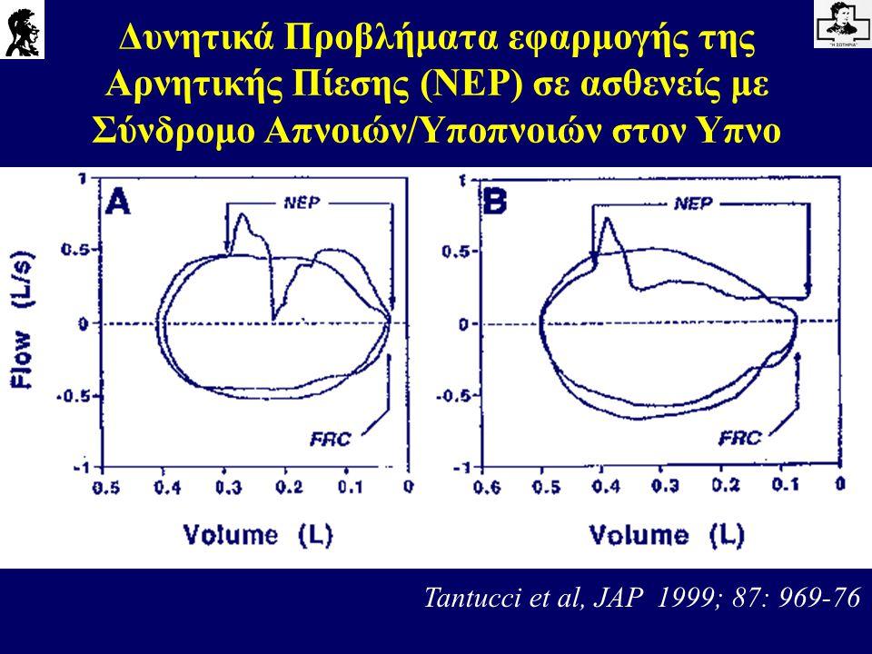 Δυνητικά Προβλήματα εφαρμογής της Αρνητικής Πίεσης (NEP) σε ασθενείς με Σύνδρομο Απνοιών/Υποπνοιών στον Υπνο Tantucci et al, JAP 1999; 87: 969-76