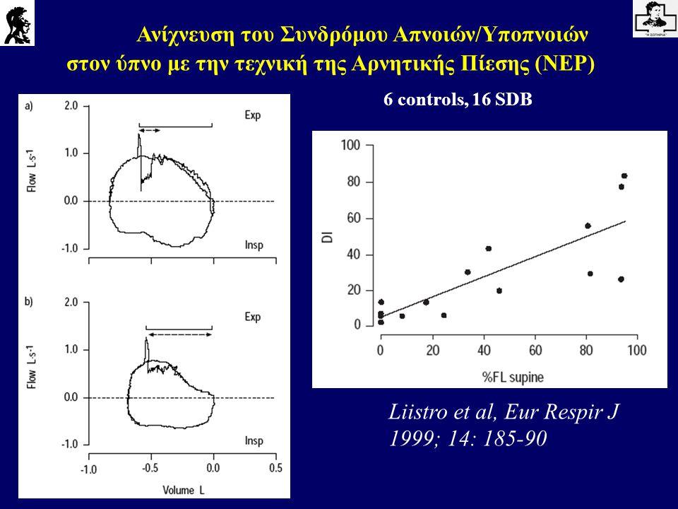 Liistro et al, Eur Respir J 1999; 14: 185-90 Ανίχνευση του Συνδρόμου Απνοιών/Υποπνοιών στον ύπνο με την τεχνική της Αρνητικής Πίεσης (NEP) 6 controls,