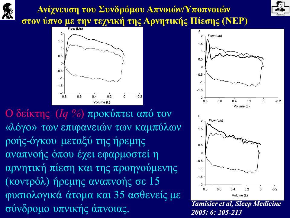 Ανίχνευση του Συνδρόμου Απνοιών/Υποπνοιών στον ύπνο με την τεχνική της Αρνητικής Πίεσης (NEP) Tamisier et al, Sleep Medicine 2005; 6: 205-213 Ο δείκτη