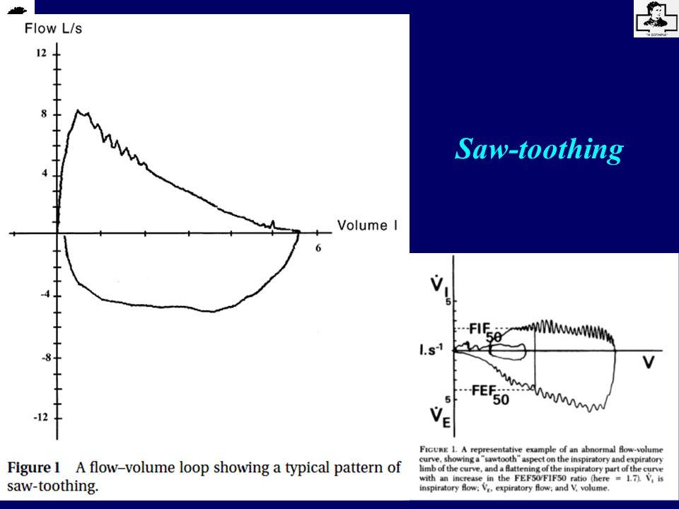 Liistro et al, Eur Respir J 1999; 14: 185-90 Ανίχνευση του Συνδρόμου Απνοιών/Υποπνοιών στον ύπνο με την τεχνική της Αρνητικής Πίεσης (NEP) 6 controls, 16 SDB