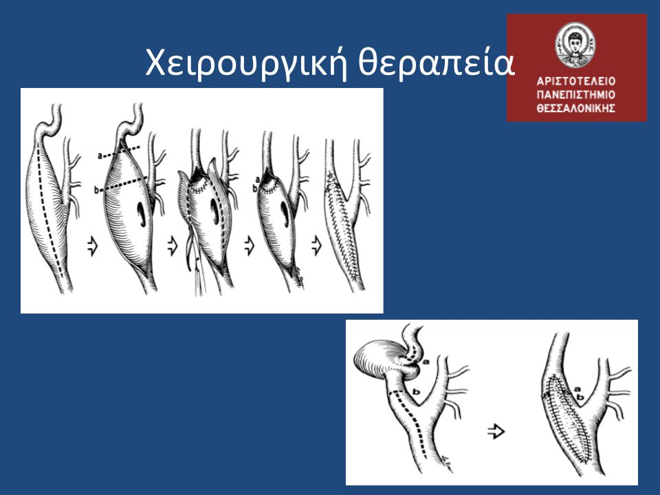 Χειρουργική θεραπεία