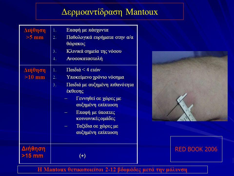 Δερμοαντίδραση Mantoux RED BOOK 2006 Διήθηση >5 mm 1. Επαφή με πάσχοντα 2. Παθολογικά ευρήματα στην α/α θώρακος 3. Κλινικά σημεία της νόσου 4. Ανοσοκα