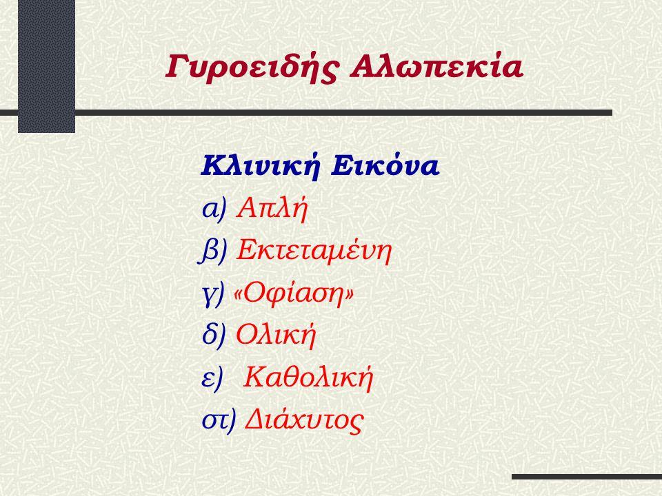 Γυροειδής Αλωπεκία Αιτιοπαθογένεια α.Γενετικοί παράγοντες β.