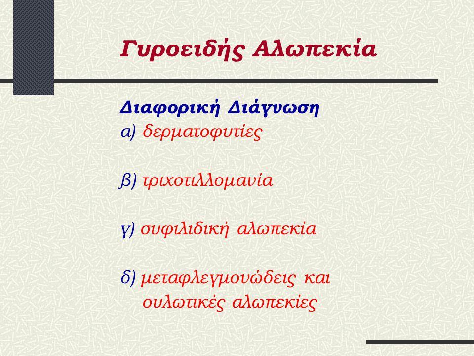 Γυροειδής Αλωπεκία Κλινική Εικόνα α) Απλή β) Εκτεταμένη γ) «Οφίαση» δ) Ολική ε) Καθολική στ) Διάχυτος
