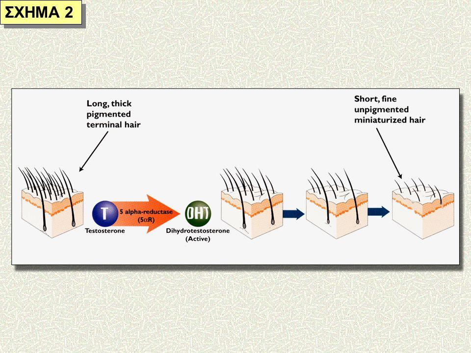 Ανδρογενετική Αλωπεκία Αιτιοπαθογενεια Η μετατροπή της κυκλοφορούσης τεστοστερόνης στην 5α-διυδροτεστοστερόνη στους ευαίσθητους τριχοθυλάκους με τη μεσολάβηση του ενζύμου 5α-reductase 22,34,35,36 Η αύξηση της συγκέντρωσης της 5α- διυδροτεστοστερόνης στους ευαίσθητους τριχοθυλάκους οδηγεί σε αναστολή του μεταβολισμού αυτών των τριχοθυλάκων