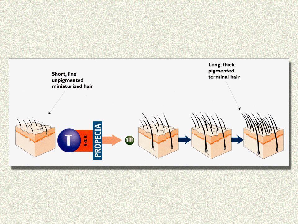 Φιναστερίδη 1.Η πρώτη εγκεκριμένη από του στόματος θεραπεία σε μορφή χαπιού 2.