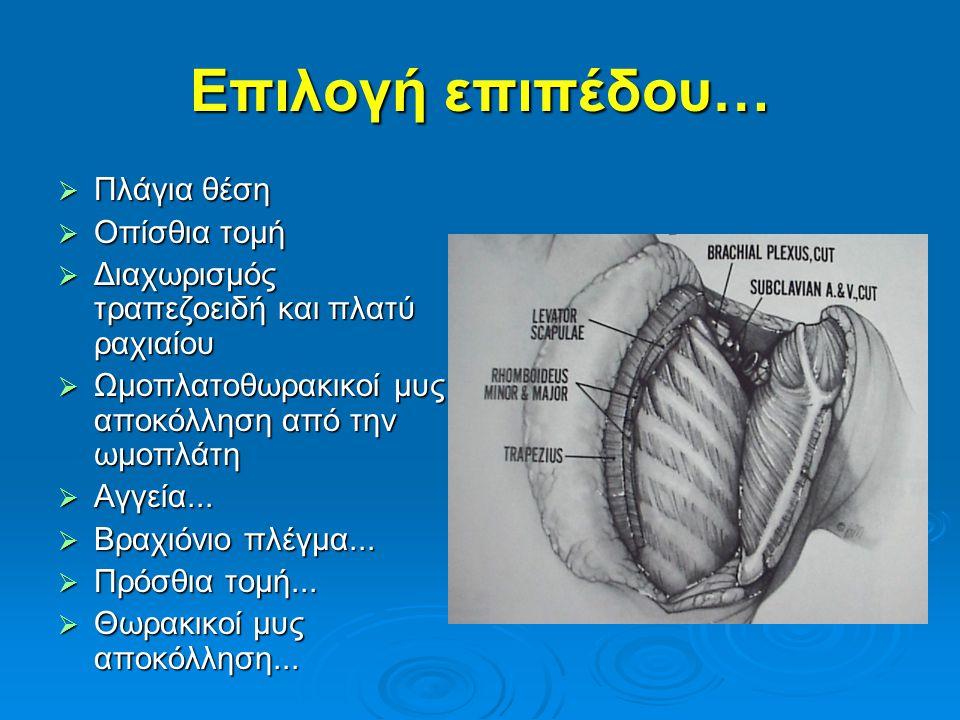 Επιλογή επιπέδου…  Πλάγια θέση  Οπίσθια τομή  Διαχωρισμός τραπεζοειδή και πλατύ ραχιαίου  Ωμοπλατοθωρακικοί μυς αποκόλληση από την ωμοπλάτη  Αγγε