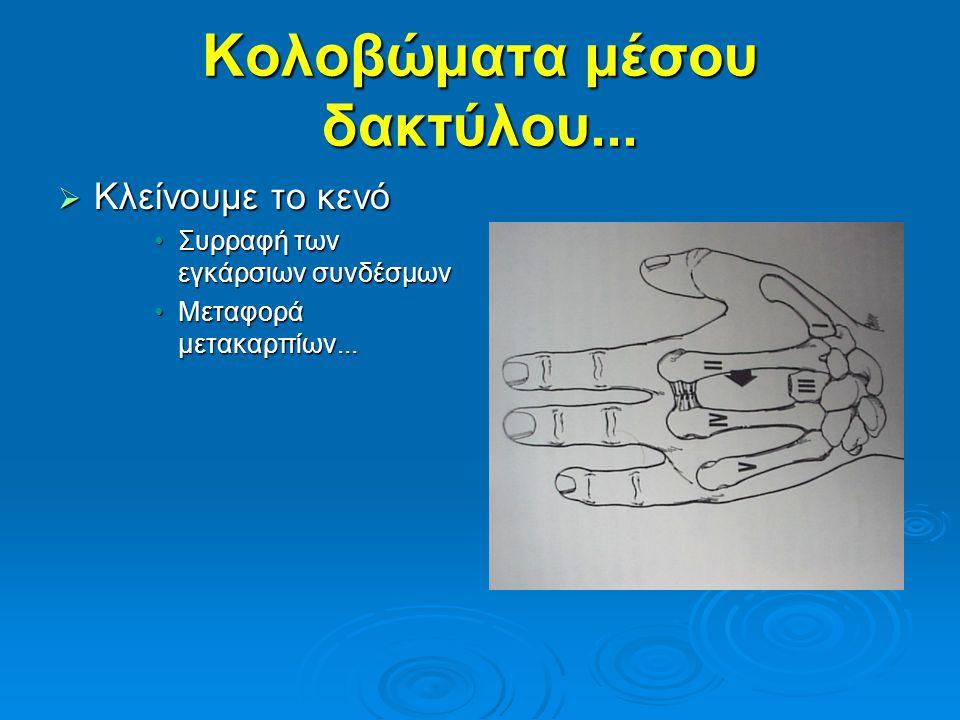 Κολοβώματα μέσου δακτύλου...  Κλείνουμε το κενό •Συρραφή των εγκάρσιων συνδέσμων •Μεταφορά μετακαρπίων...