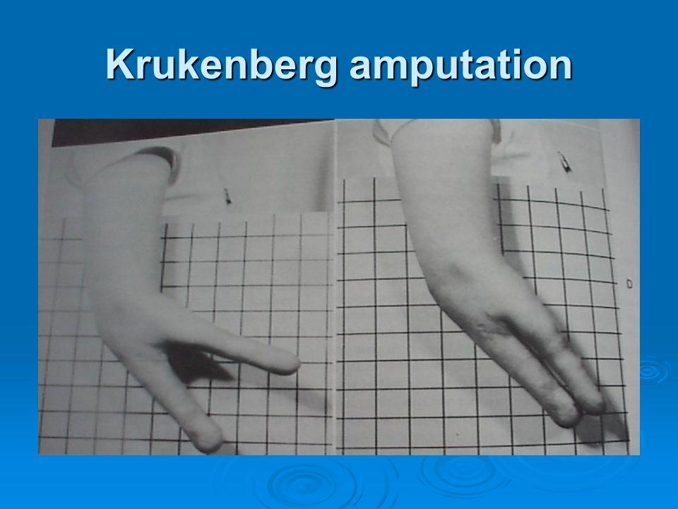 Krukenberg amputation